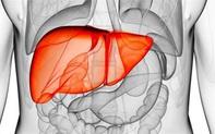 """5 thói quen tai hại, cực nhiều người làm mỗi ngày, khiến gan bị """"ngược đãi"""" nghiêm trọng: Đây cũng là lý do xơ gan, ung thư gan gia tăng"""