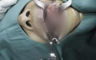Tưởng bị tưa lưỡi nên tự điều trị, người bệnh bất ngờ khi biết đó là bạch sản lưỡi tiền ung thư