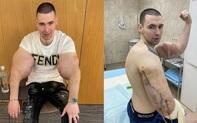 """""""Popeye nước Nga"""" buộc phải phẫu thuật sau khi cánh tay kinh dị bị thối vì tiêm hóa chất kích thích"""
