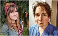 """Nữ y tá xinh đẹp chia sẻ hình ảnh gương mặt biến dạng, đã đi qua """"địa ngục"""" sau 65 tiếng làm việc và lời khẩn cầu dành cho tất cả mọi người"""