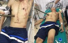 Hy hữu: Trèo cây bị ngã, người đàn ông 50 tuổi bị cọc gỗ đâm xuyên bụng