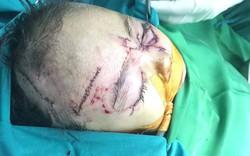 Bé gái 2 tuổi bị chó nhà cắn chi chít vết rách ở mặt và đầu