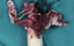 Kinh hoàng: Chàng trai 16 tuổi phải cắt cụt bàn tay do vừa dùng điện thoại vừa sạc