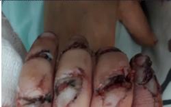 Gia đình bất cẩn, bé 23 tháng tuổi bị dập nát bàn tay do kẹt vào máy rửa xe