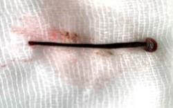 Phụ giúp gia đình đi làm rẫy, một sinh viên bị con vắt dài 4cm chui vào hốc mũi