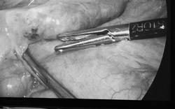 Hy hữu: Phẫu thuật ruột thừa phát hiện xương cá đâm xuyên thành ruột hiếm