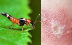 Dùng kiến ba khoang chữa bệnh, nam thanh niên bị hoại tử cả vùng da