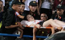 GĐ điều hành CLB Nam Định nói gì về sự việc pháo sáng gây thương tích?
