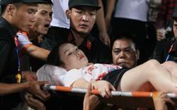 Nữ cổ động viên đổ máu trong trận Hà Nội – Nam Định: Phải điều trị ít nhất 15 ngày và chờ ghép da