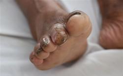 Phát hiện một người đàn ông ở Hà Tĩnh bị nhiễm vi khuẩn làm hoại tử cơ thể người