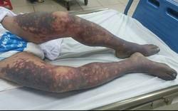 Không may trượt tay vào con dao, một người phụ nữ ở Hải Phòng bị nhiễm liên cầu khuẩn lợn