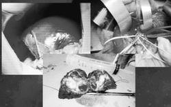 Phẫu thuật cắt gan lớn, cứu sống 2 cháu bé bị ung thư