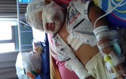 Đi xem đốt rác, bé gái 3 tuổi bị bỏng nặng bởi lọ nước rửa tay khô đang cầm trong tay
