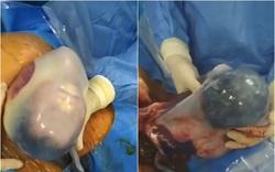 Cặp song sinh chào đời vẫn còn nguyên trong túi ối tại Bệnh viện Sản Nhi Quảng Ninh