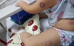 Bị gà mổ vào chân, trẻ 6 tuổi bị nhiễm vi khuẩn ăn thịt người