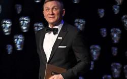 """Tài tử James Bond gây sốc với mặt mũi """"biến dạng"""""""