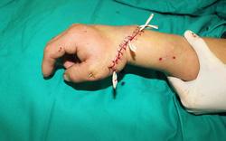 Nối thành công bàn tay của người đàn ông bị đứt rời do tai nạn lao động