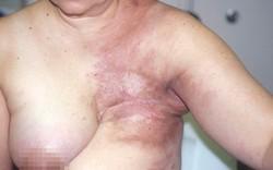 """Nguy hiểm: Ngay cả phụ nữ Thủ đô cũng tin lời """"Thầy lang"""" tự đắp lá thuốc chữa ung thư vú"""