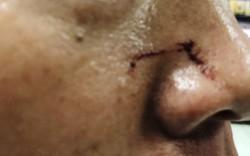 Bị đơn đánh kiểm sát viên 'chảy máu mũi' ngay tại tòa