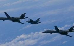 """Mỹ khó hiểu máy bay tại Thái Bình Dương liên tục trúng """"đòn"""" laser"""