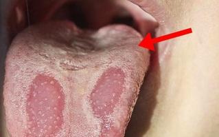 3 tín hiệu kỳ lạ trên lưỡi cho thấy đường huyết của bạn tăng cao quá mức, cần ăn nhiều 4 món để tránh các biến chứng đáng sợ