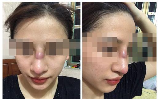 Kinh hãi nhìn chiếc mũi biến dạng sau khi nâng của cô gái 19 tuổi