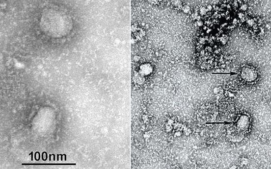 """Trung Quốc công bố """"chân dung"""" virus corona: Sự nguy hiểm chết người đằng sau tử thần nhỏ hơn cả bụi siêu mịn"""