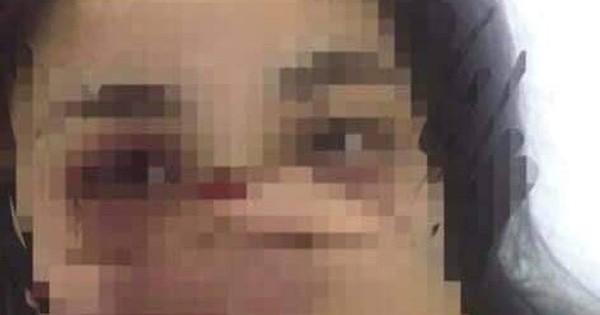 Vụ nữ sinh nghi bị gạ tình, hành hung: Nam bác sỹ liên quan xin nghỉ việc ngay khi bị đình chỉ công tác