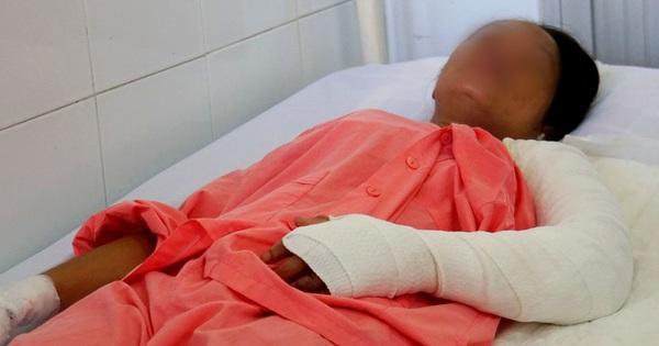 Thương tâm 5 sản phụ bị bỏng nặng, có người phải cắt bỏ cả bàn tay vì nằm than sau sinh