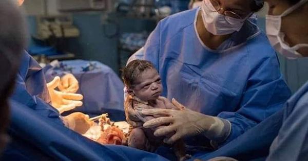 Hình ảnh em bé vừa chào đời đã ''lườm xắt xéo'' bác sĩ khiến cư dân mạng được một trận cười thả ga