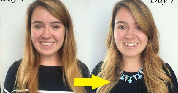 7 ngày không ăn đường, làn da của cô gái này đã thay đổi đáng kể, đẩy lùi cả da lão hóa lẫn mụn hoành hành