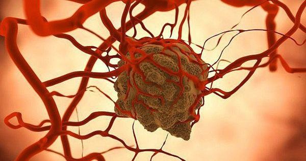 Giám đốc Bệnh viện K: Tế bào ung thư rất ''khôn'', đừng kiêng ăn, hãy làm điều này để chiến thắng bệnh