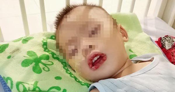 Gia đình bất cẩn, bé trai 21 tháng tuổi phải nhập viện do uống nước tẩy rửa bồn cầu