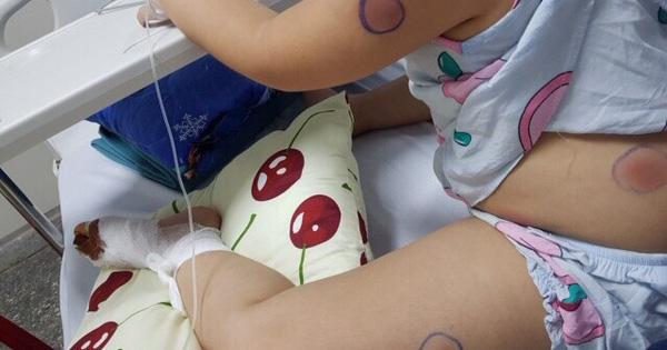 Bị gà mổ vào chân, trẻ 6 tuổi bị nhiễm vi khuẩn ăn thịt người - kết quả vietlott 18102019